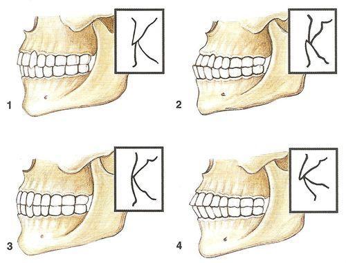 Обозначение пародонтита в зубной формуле