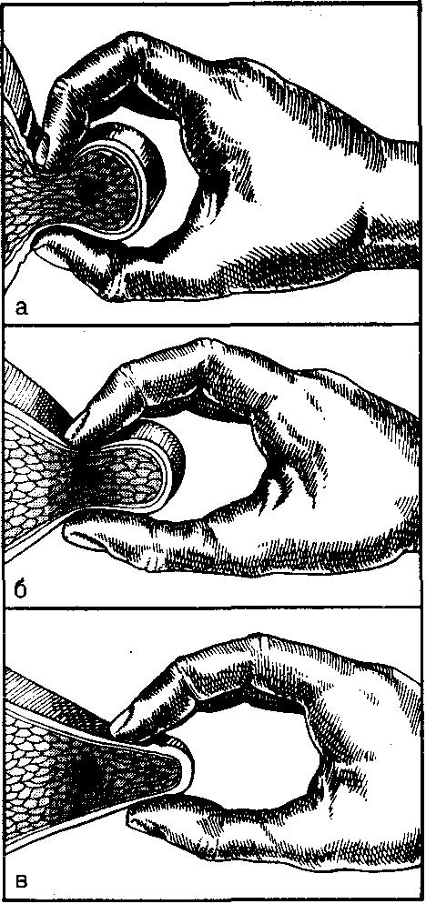 Ботокс при мигрени в триггерные точки схема