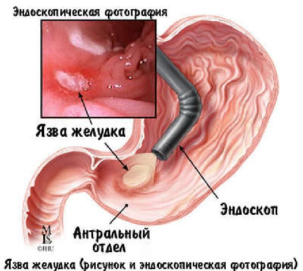 Фгс желудка как делается - Лечение гастрита