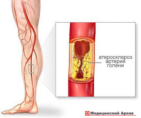 Мочевая кислота и холестерин