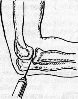 Алгоритм пункции локтевого сустава онемение конечностей и болезнь суставов
