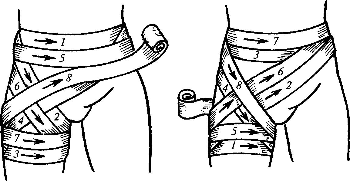 Колосовидной повязки на бедренный сустав хрящевание суставов