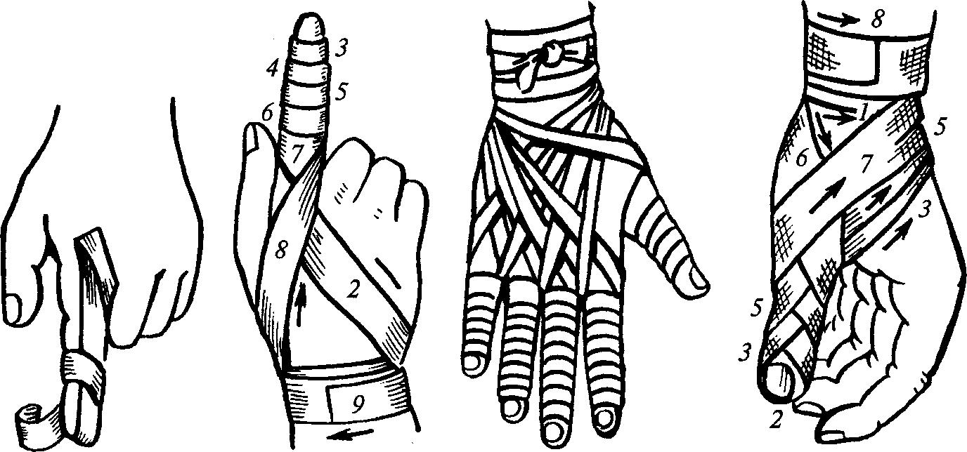 фотографиях простых наложить повязку на палец руки картинки раз признавалась