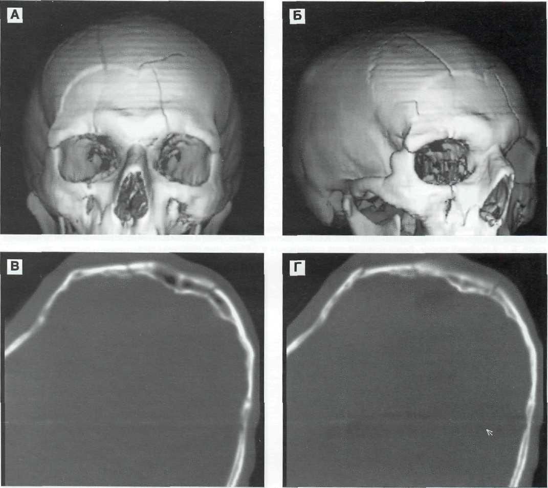 Опухоль в височной части головы симптомы