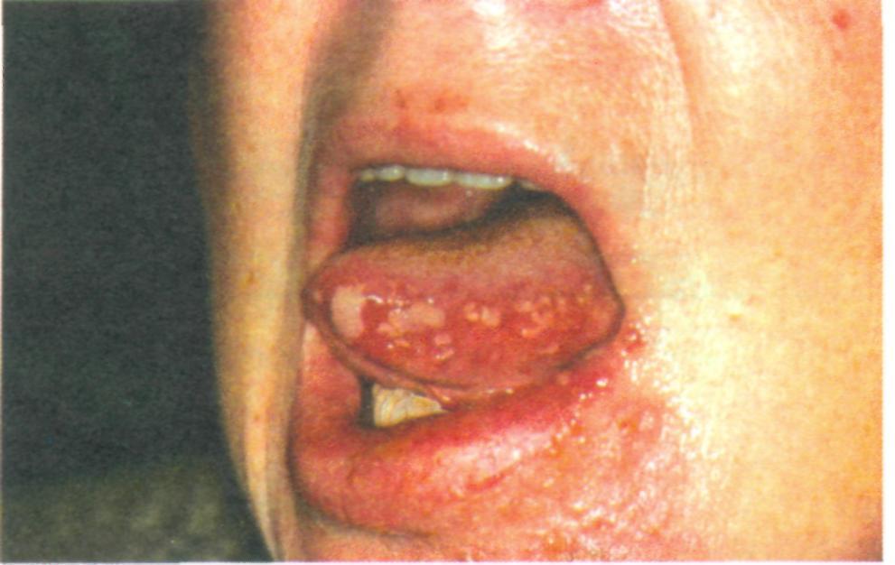 Лечила зуб при герпесе