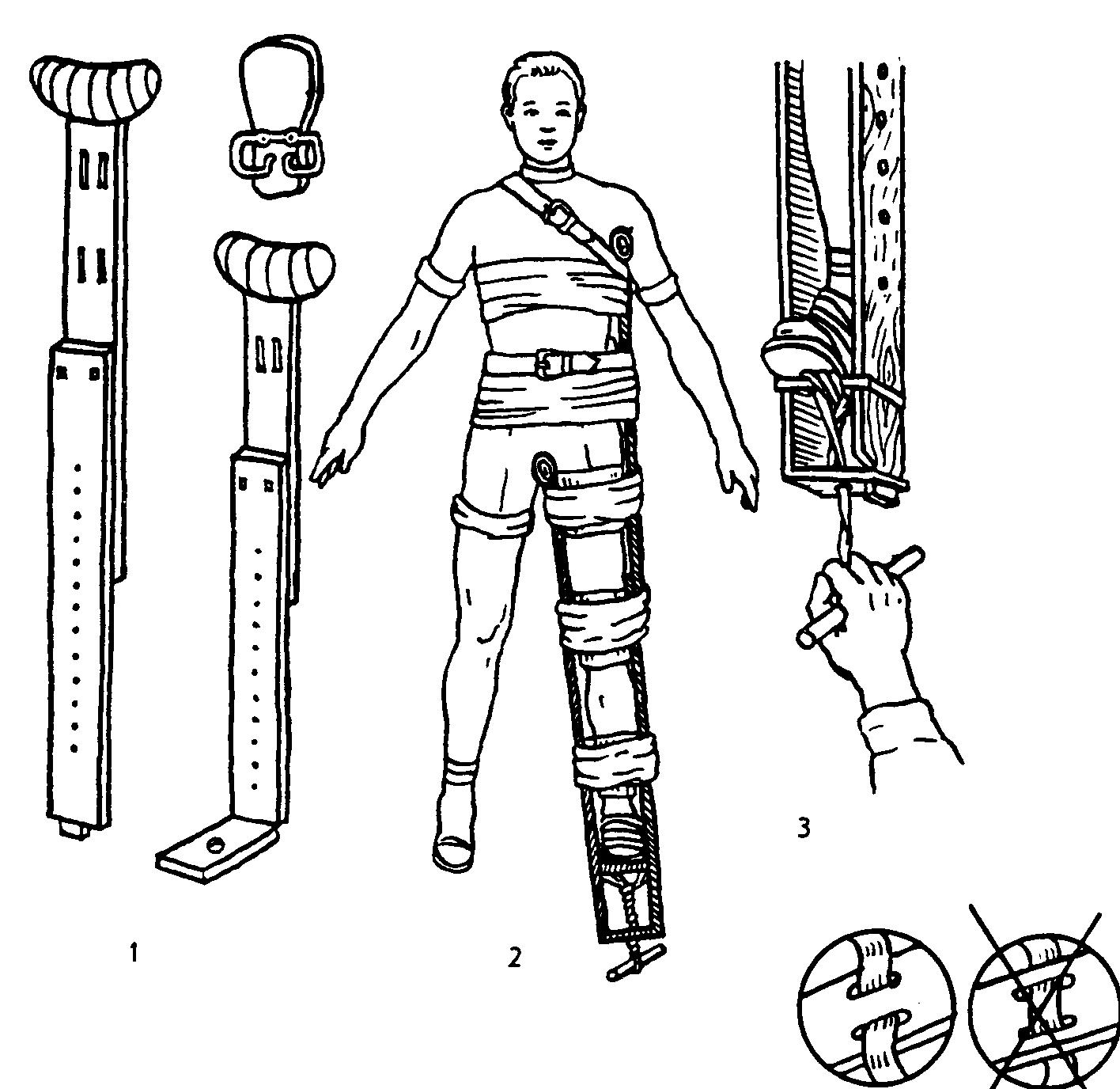 Тема№6.Первая помощь при переломах костей конечностей.
