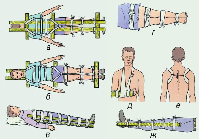 первая помощь при переломе трубчатых костей