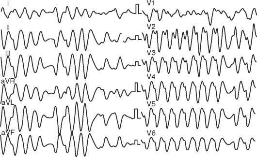 Инфаркт миокарда с подъемом сегмента st рекомендации
