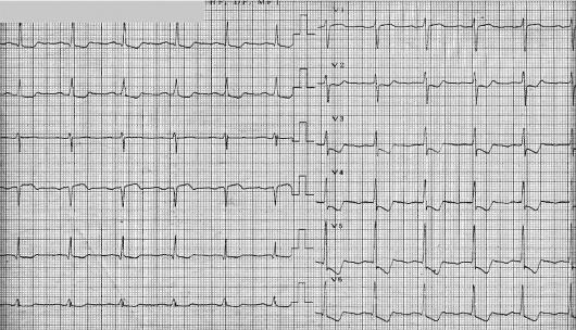 Депрессия сегмента st при инфаркте