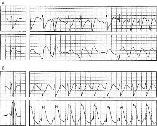 Экг при остром инфаркте миокарда с подъемом сегмента