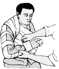 При переломах костей в области локтевого сустава при транспортировке больного необходимо