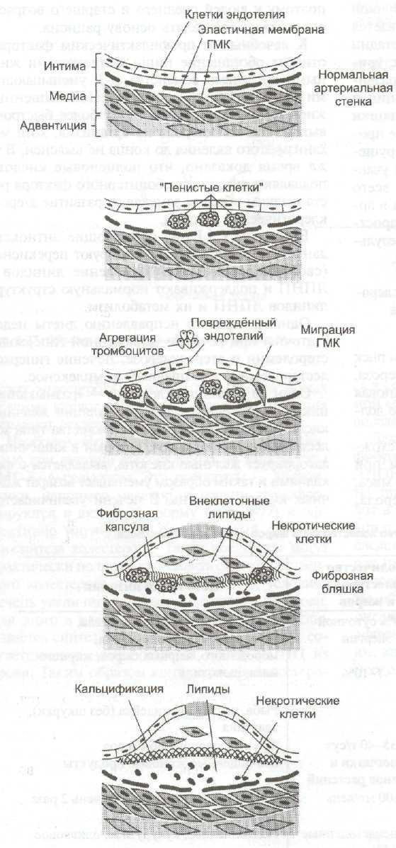 Цитокины и атеросклероз молекулярные механизмы патогенеза thumbnail