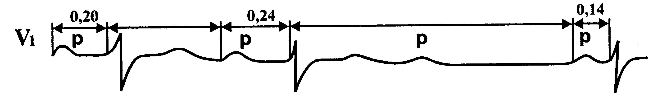 Признаки синоатриальной блокады на ЭКГ