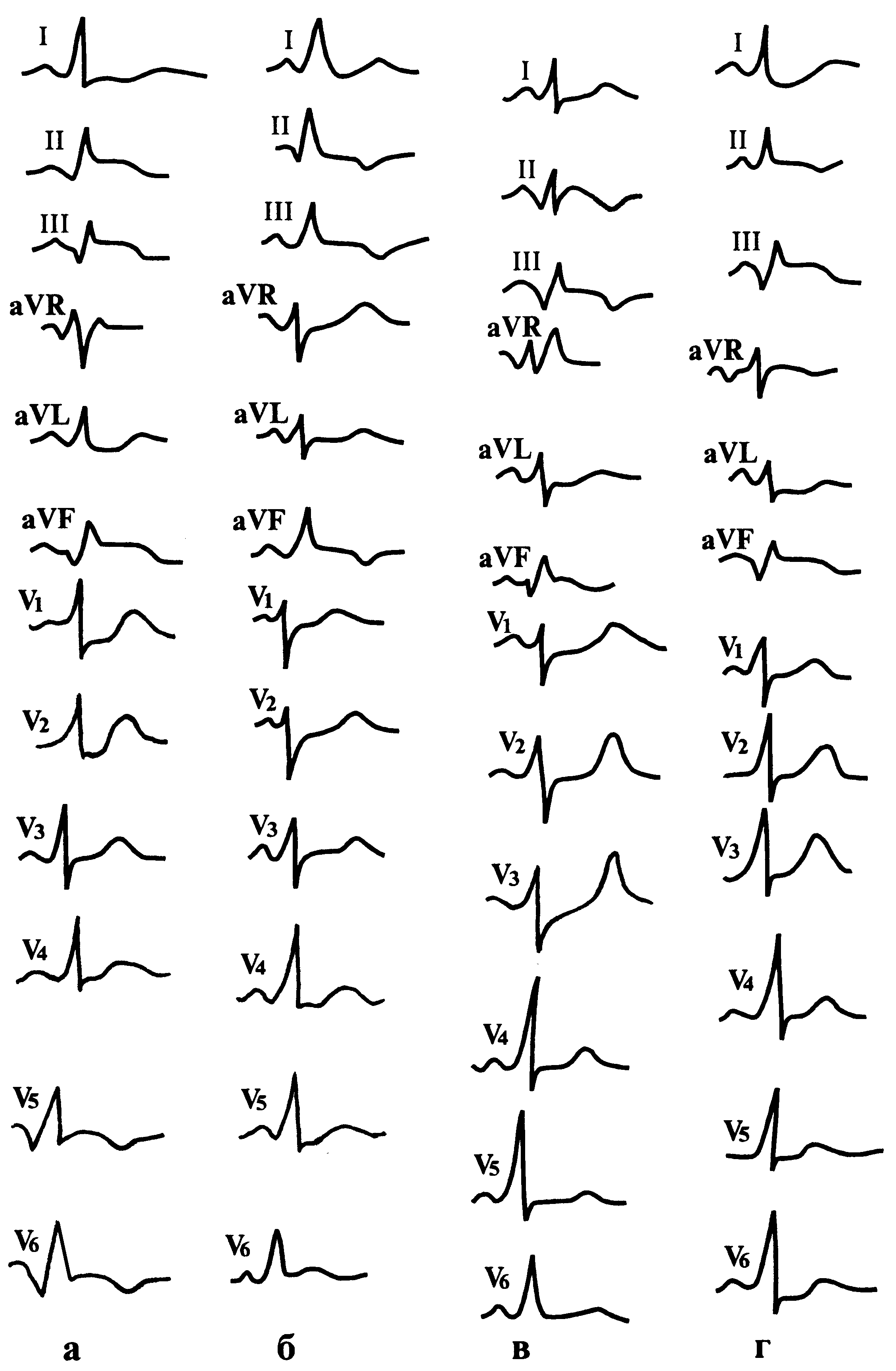 Инфаркт миокарда боковой стенки левого желудочка