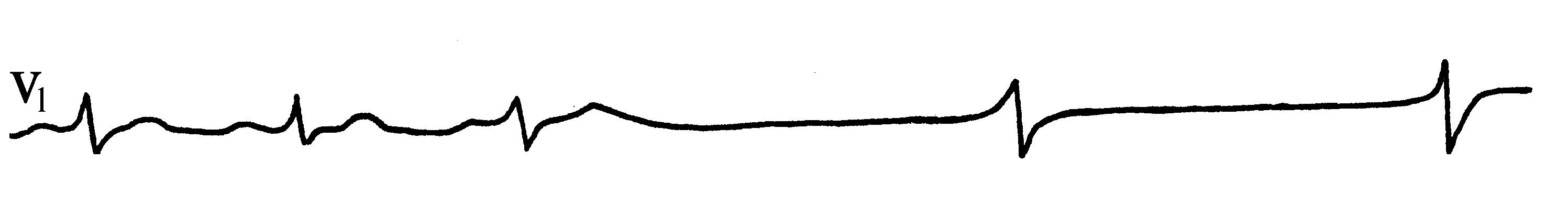 Описание экг при мерцательной аритмии