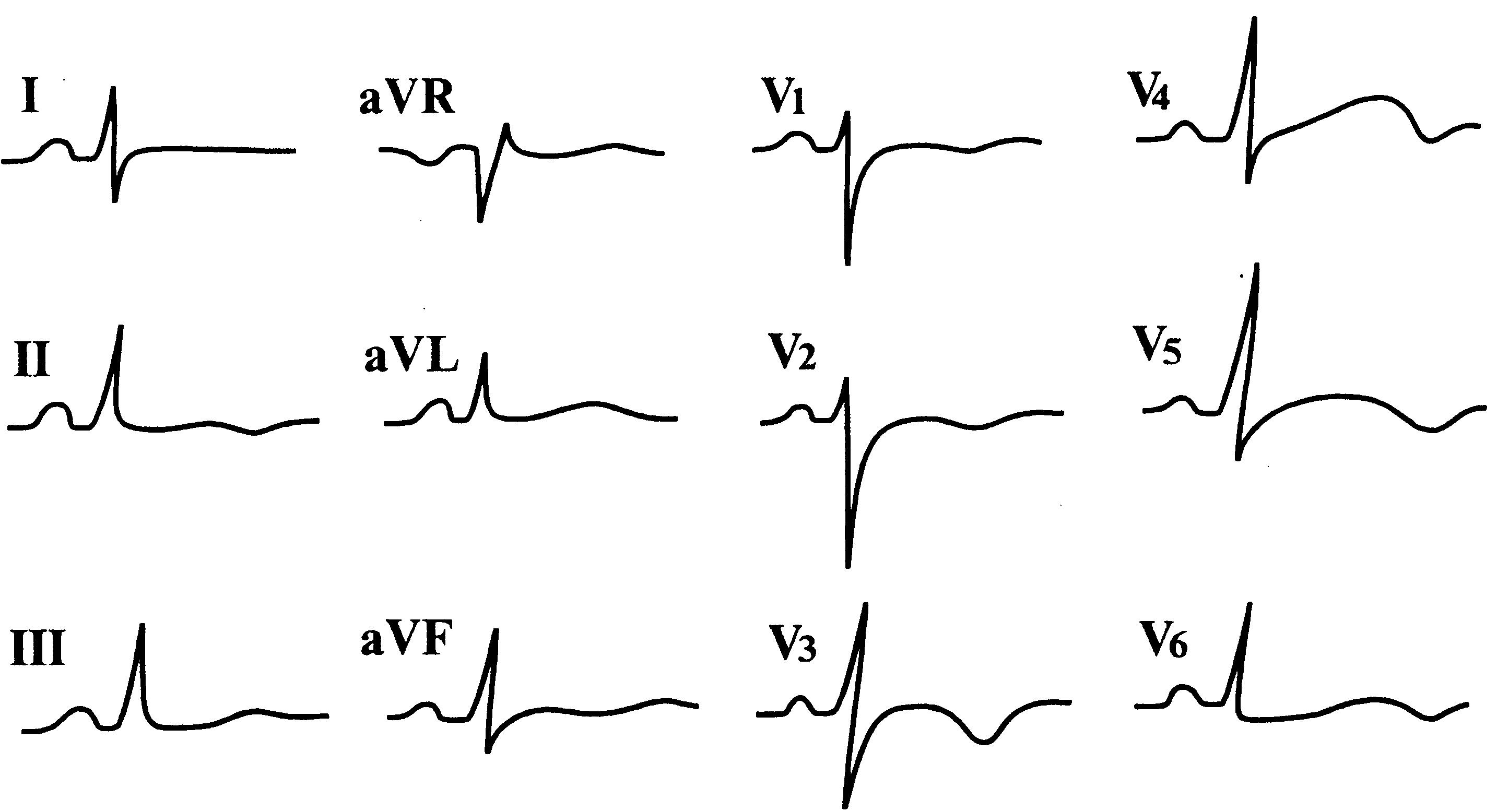 экг при аритмиях сердца pdf