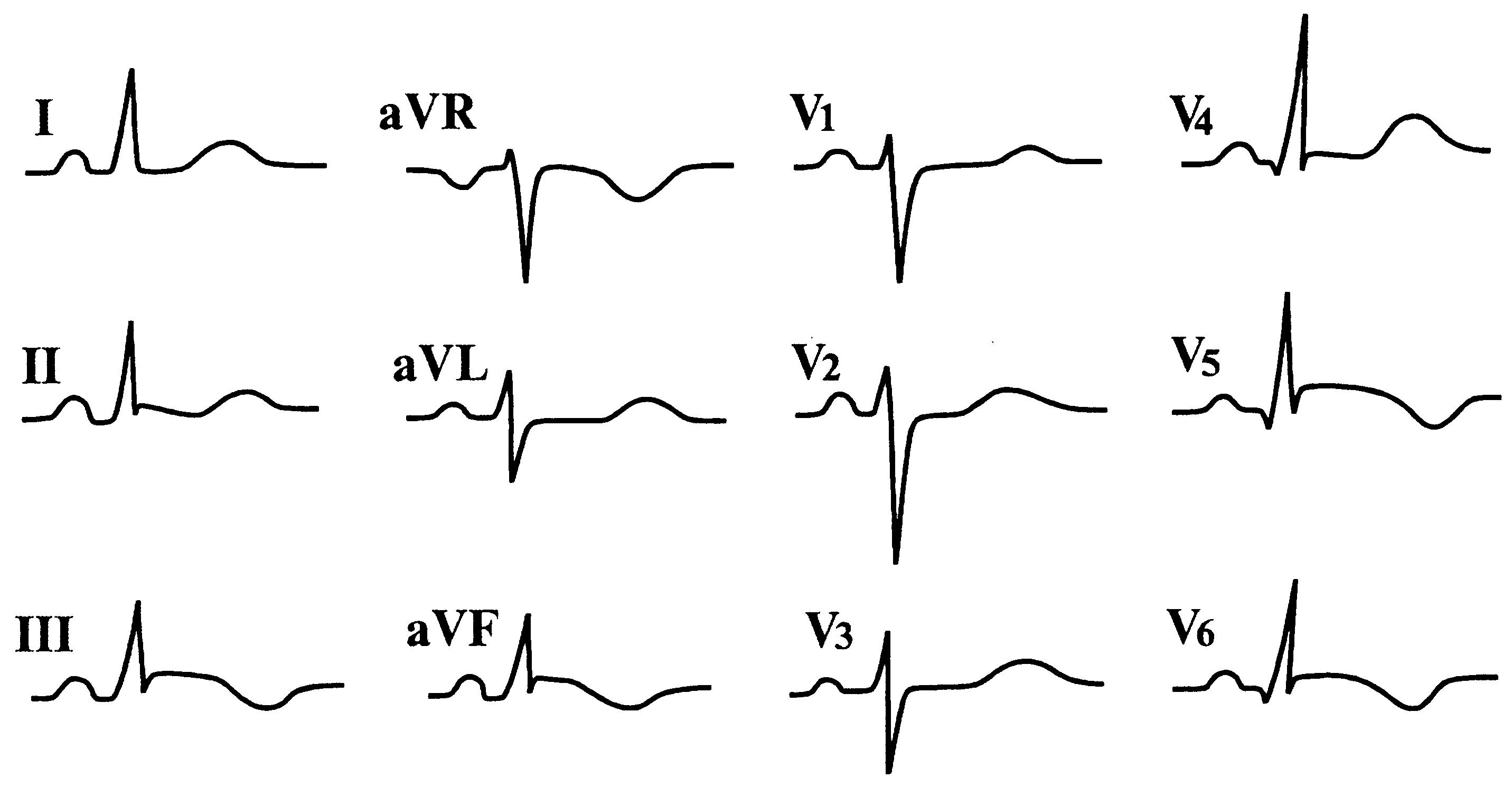 Как выявить стенокардию на экг