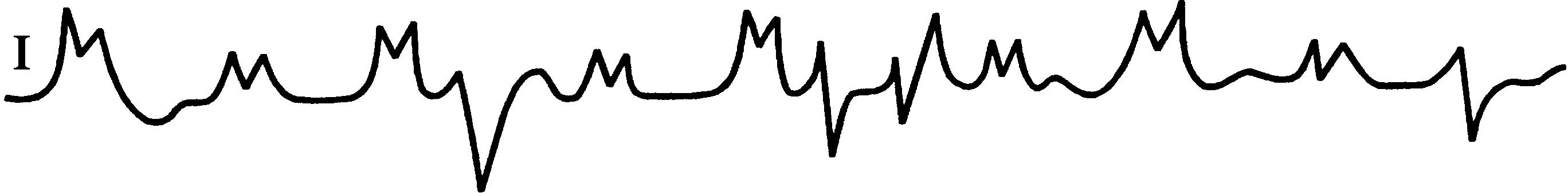 Идиовентрикулярный ритм — причины возникновения, диагностика, лечение