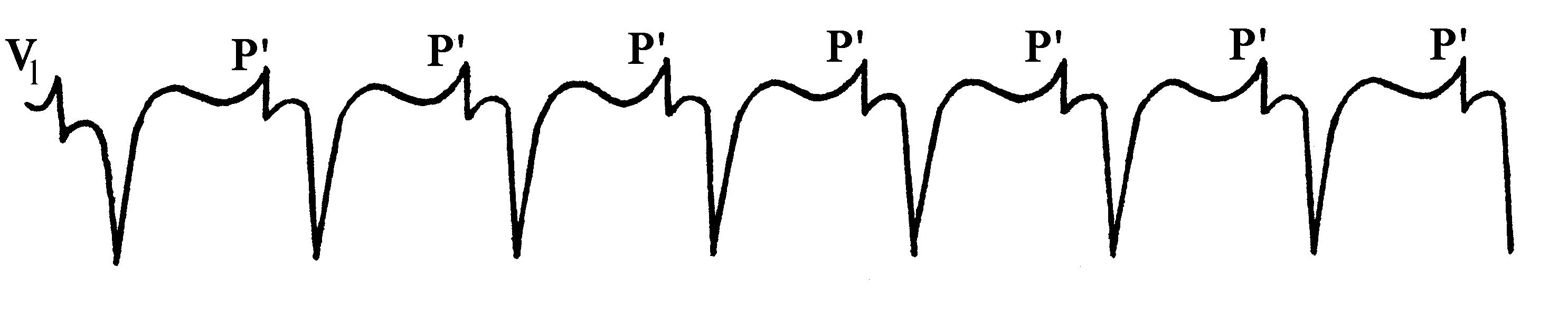 Экг аритмии примеры
