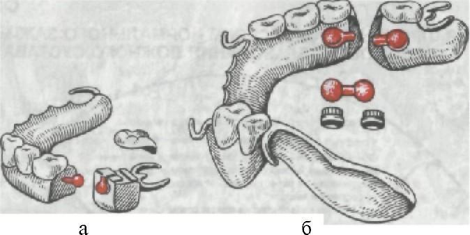 Ложный сустав нижней челюсти
