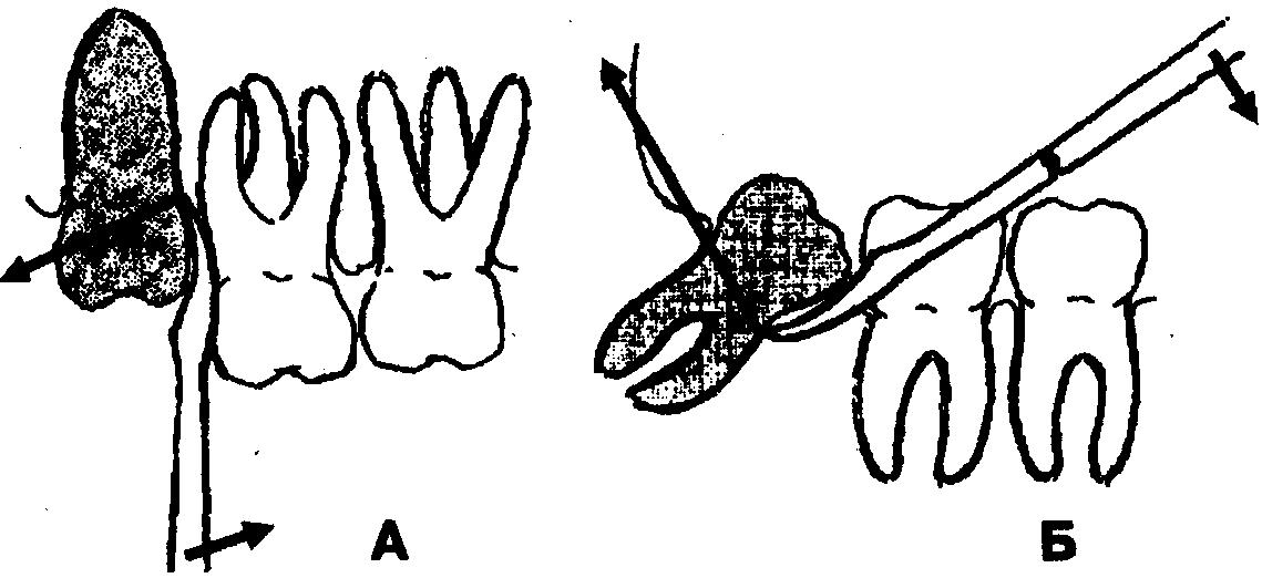 Элеватор при удалении зуба транспортер космический