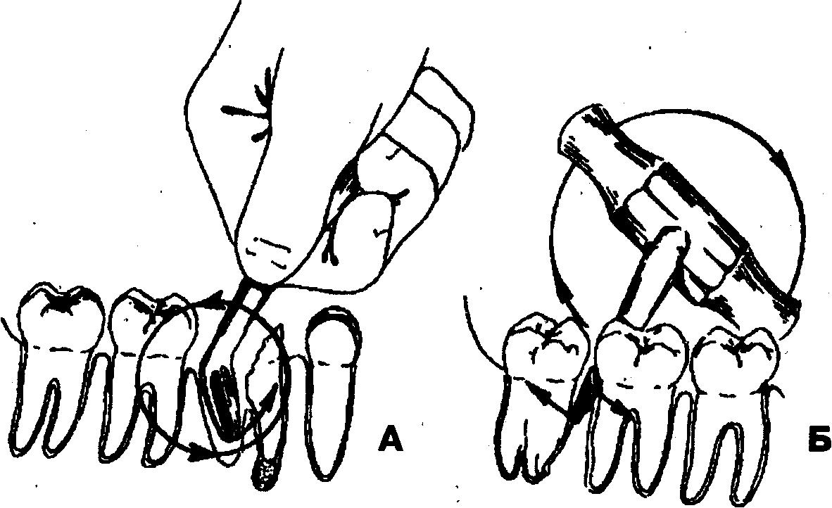 Элеватор при удалении зуба ленточный конвейер с тележкой