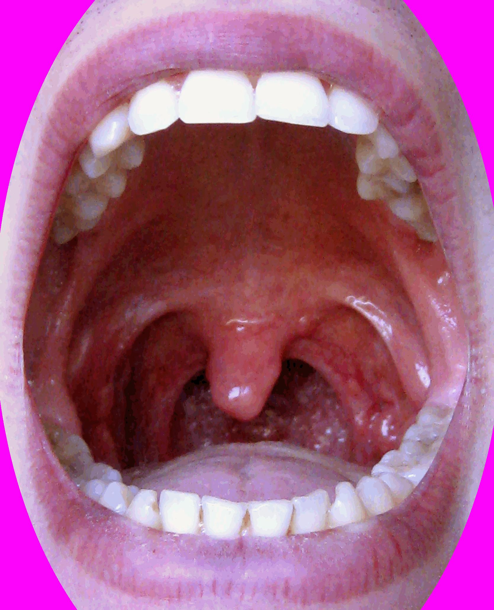 картинки небного язычка огромным трепетом