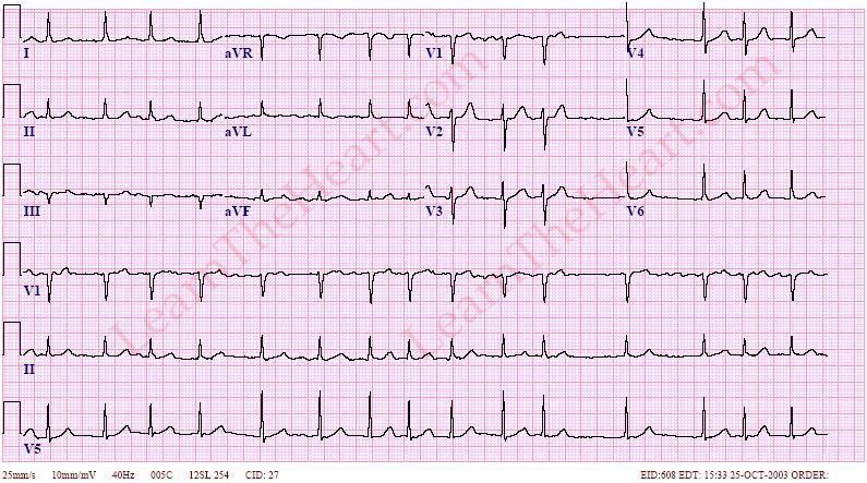 кардиотест для диагностики инфаркта миокарда