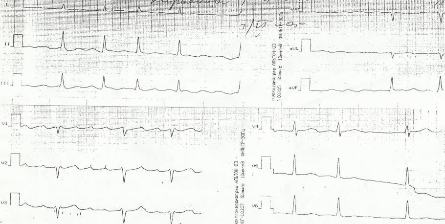 Выраженная синусовая брадикардия ⋆ Лечение Сердца