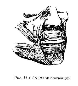 Паралич мимической мускулатуры