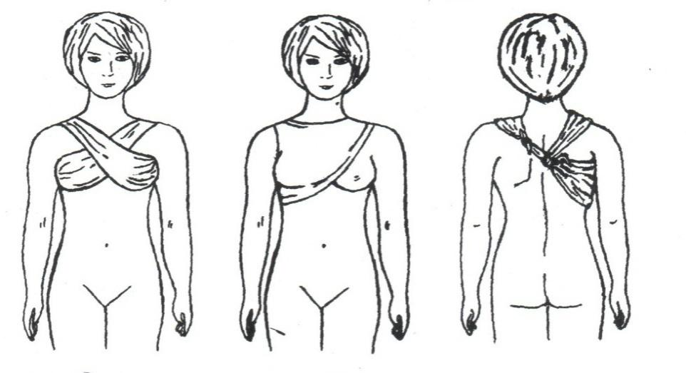 Уход за урологическими больными, особенности ухода за больными с мочевыми и каловыми свищами