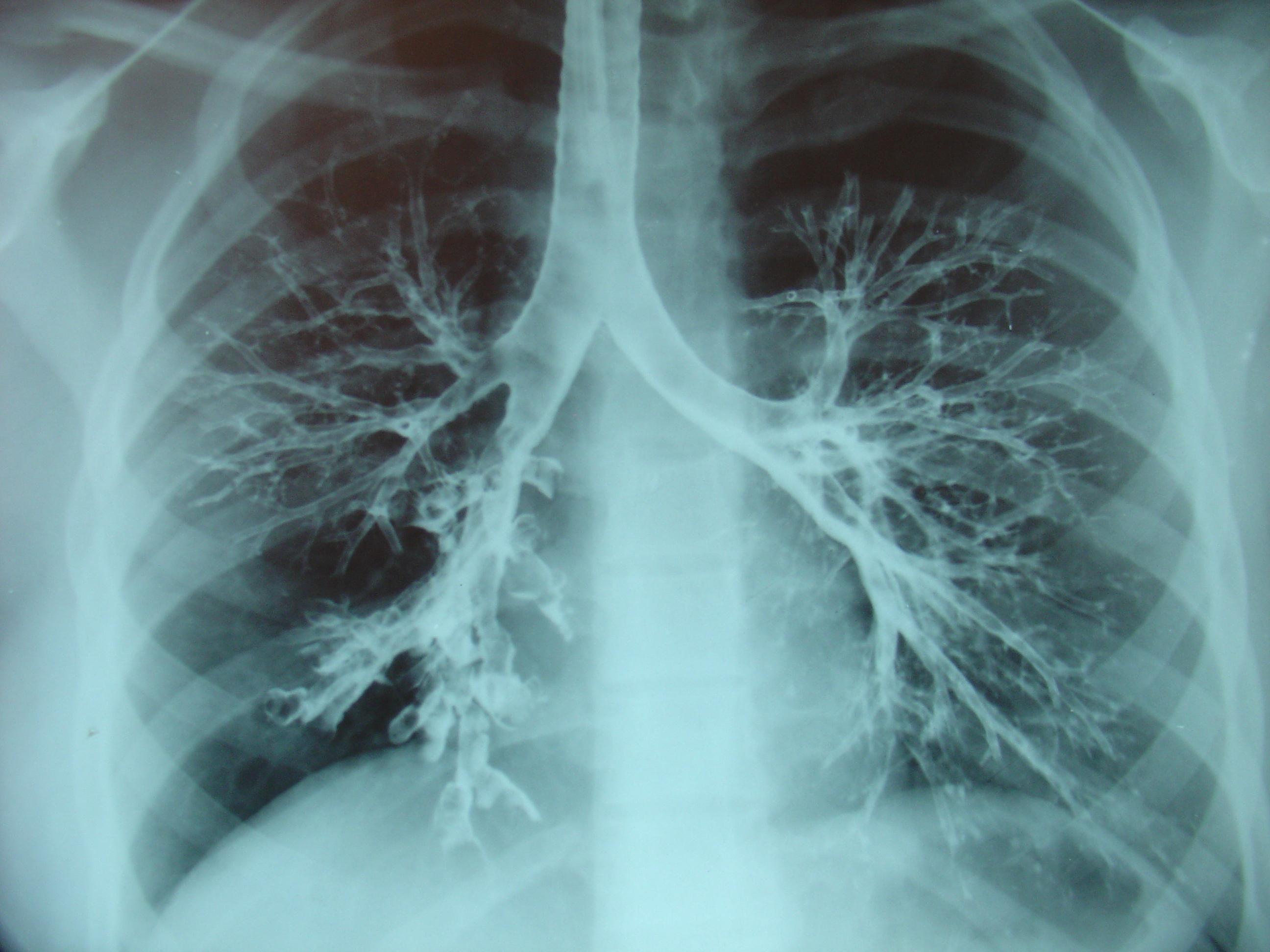 Заболевания артерий нижних конечностей