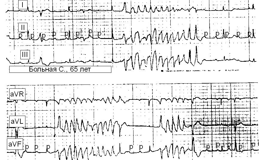 имплантация экс при инфаркте миокарда