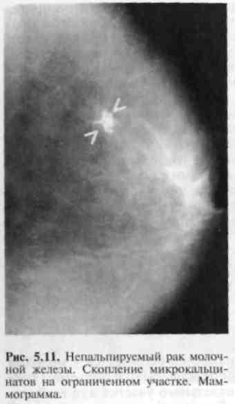 Злокачественная опухоль маммография