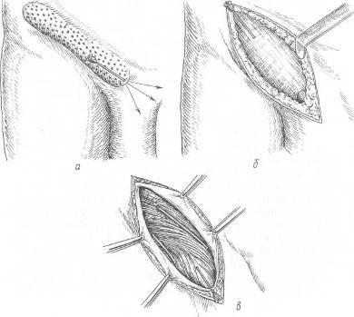 Паховая грыжа у женщин – симптомы, лечение паховой грыжи без операции, операция
