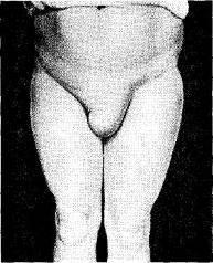 Особенности оперативного лечения прямых и больших косых паховых грыж с прямым каналом