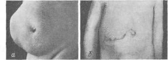 Грыжа спигелиевой линии живота: причины, симптомы, лечение