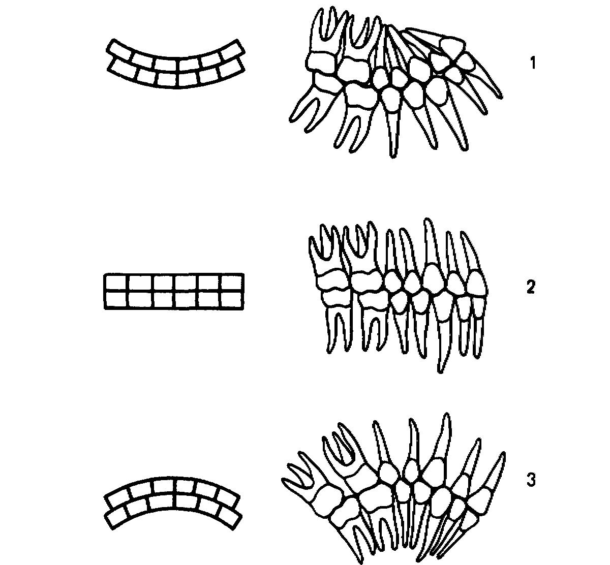 Избирательная пришлифовка при пародонтите производится на группе зубов