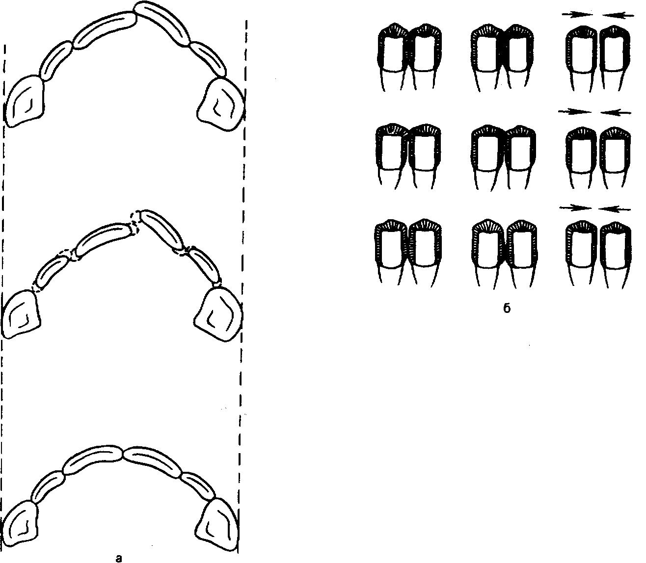 Пришлифовка зубов при пародонтите || Пришлифовка зубов при пародонтите