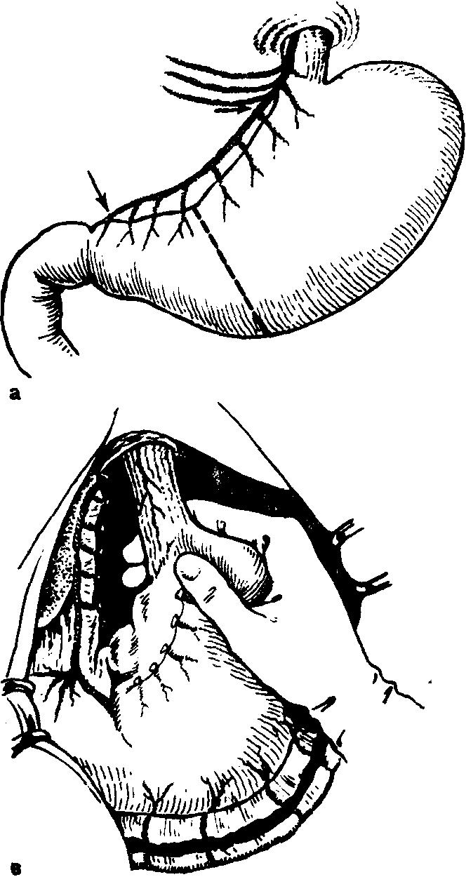 Послеоперационный период после ваготомии и пилоропластики