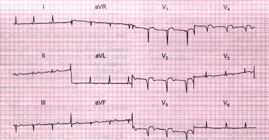 Какое лечение показано в первые 6 часов инфаркта миокарда