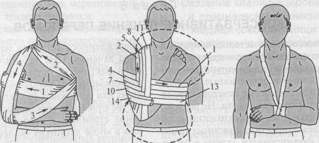 Как сделать повязку на ребрах 148