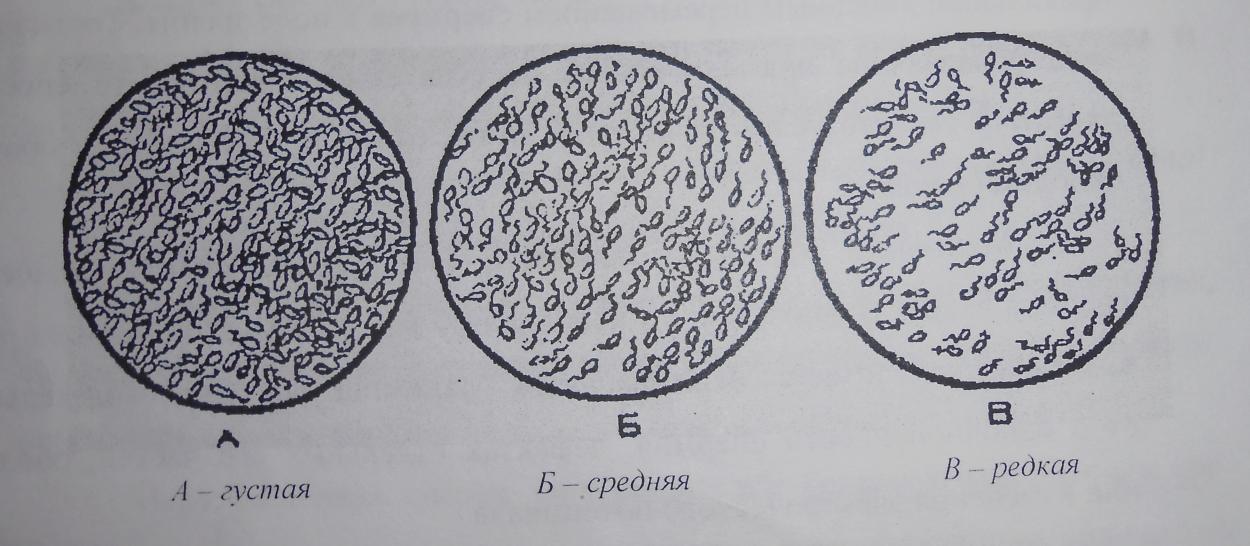 chto-pomogaet-dlya-podvizhnosti-spermatozoidov