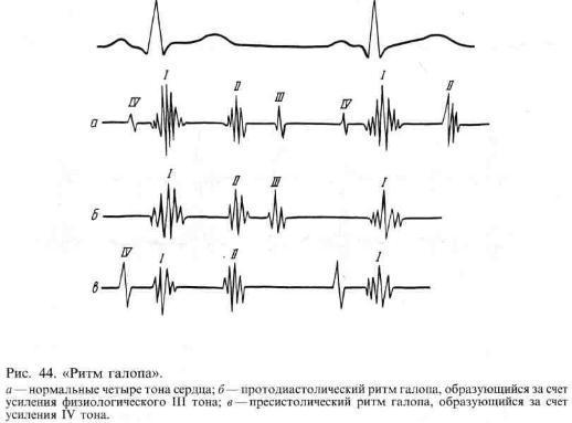 Проекция выслушивания клапанов сердца