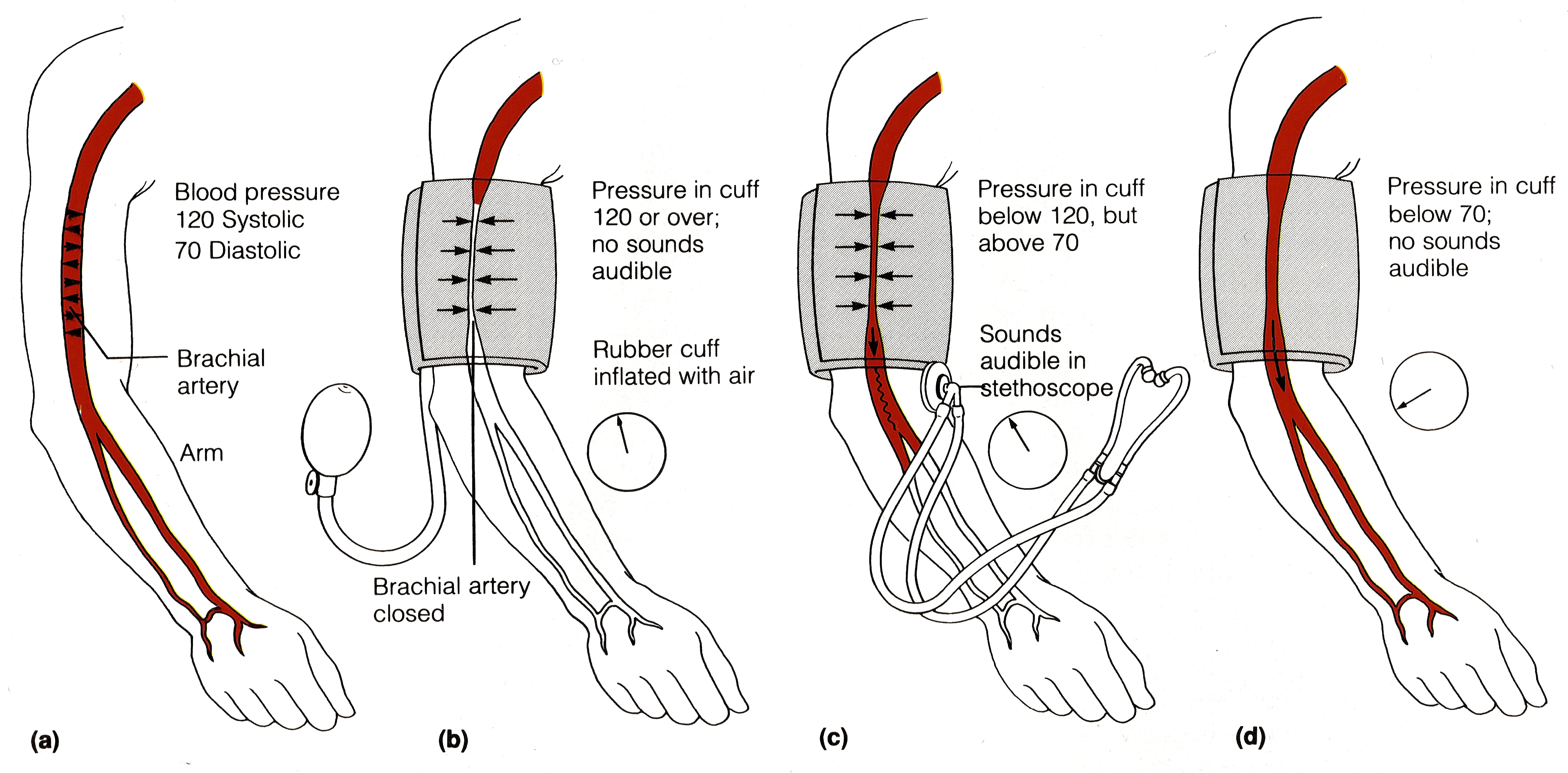 Бета-блокаторы в лечении артериальной гипертензии