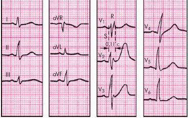 ЭКГ диагностика инфаркта при наличии блокады левой ножки пучка Гиса. Конфигурация QRS при инфаркте миокарда