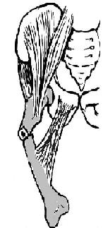 Положение отломков при переломах бедренной кости