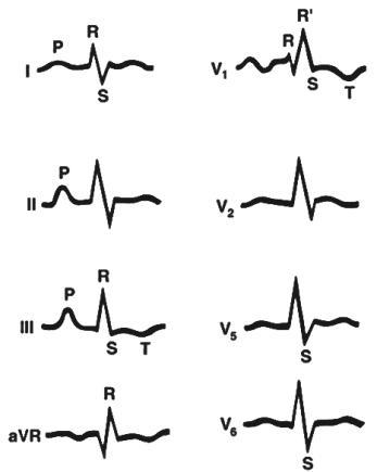 Депрессия сегмента ST сердца. Ишемический подъем ST на ЭКГ