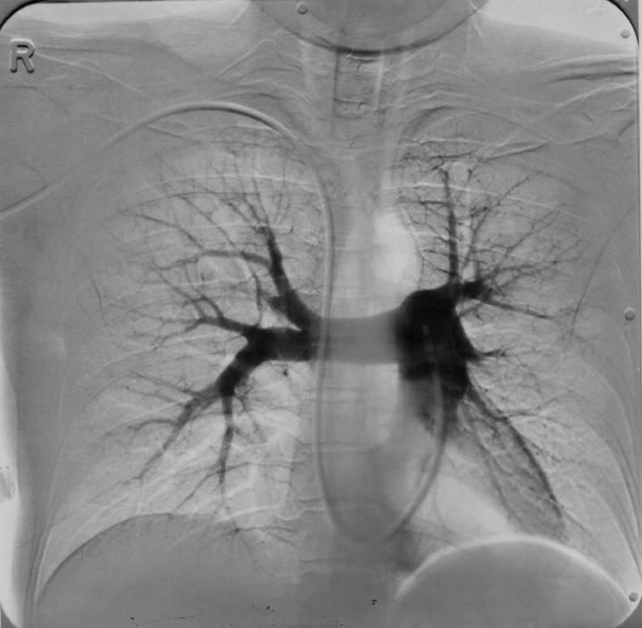 Порок сердца на рентгенограмме