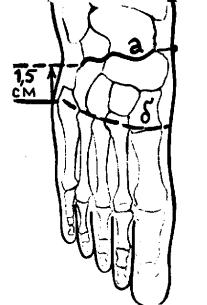 Проекции суставов нижней конечности Тазобедренный сустав (articulatio coxae).